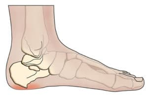 Heel bone spur illustration