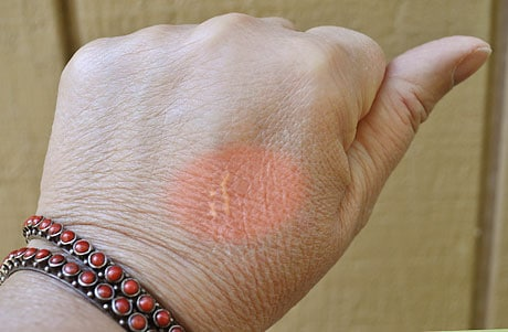 image showing barely perceptible scarring from a kitchen steam burn on back of hand