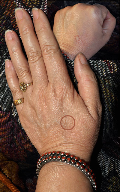 combo photo of open hand and hand as fist showing subtle scars from a steam burn
