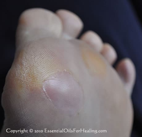 damaged skin trimmed blister healed
