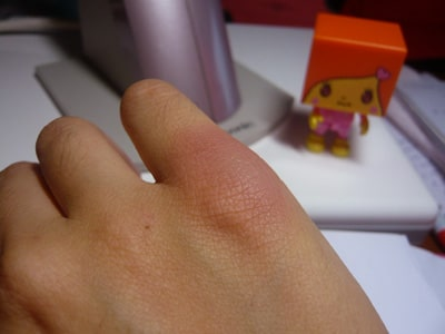 photo of young woman's swollen bruised knuckle