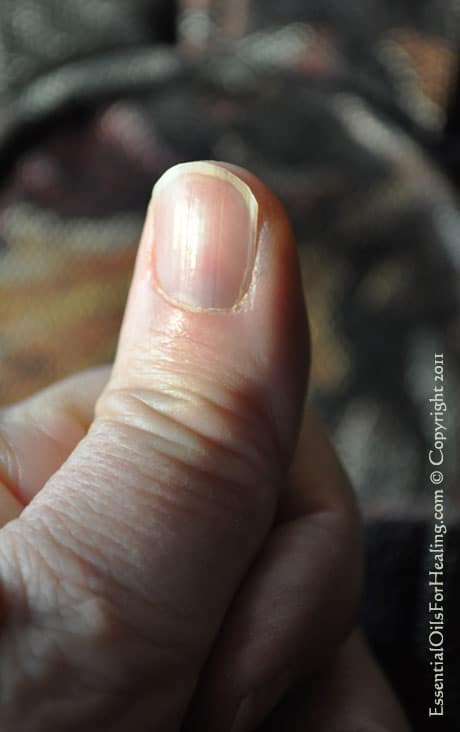Torn Weak Fingernails? No Longer!