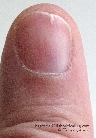 photo of woman's slightly split left thumb nail