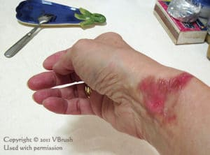 photo of less than week old burn on woman's wrist