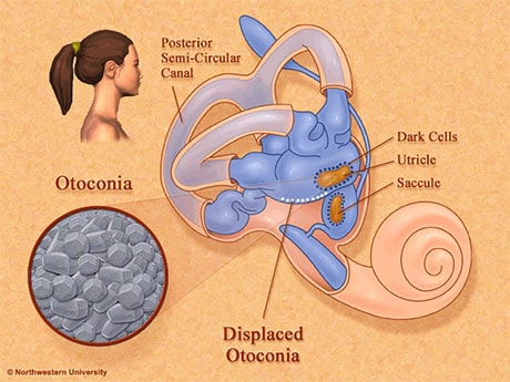 illustration of inner ear canal with otoconia 'ear crystals'