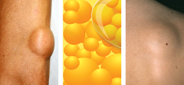 Lipoma montage to display types of lipomas and fat cells