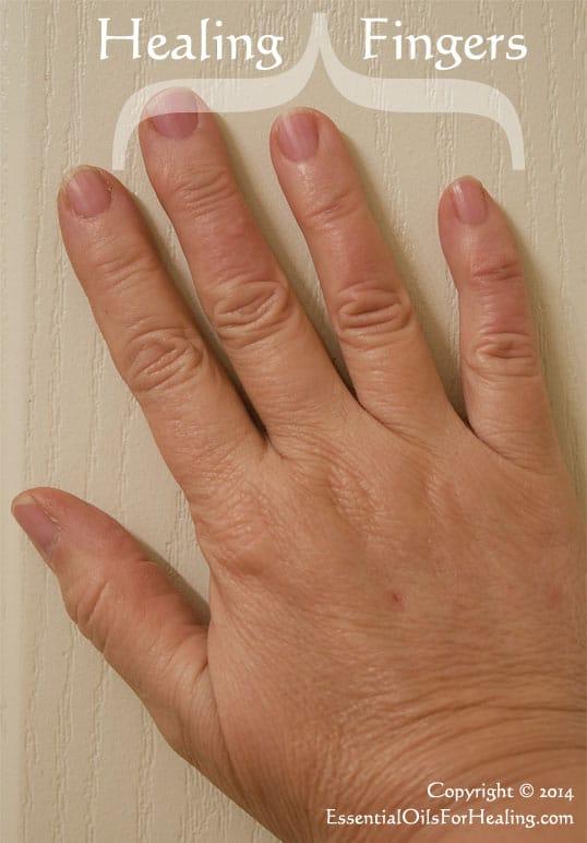 fingers healing from steam burn