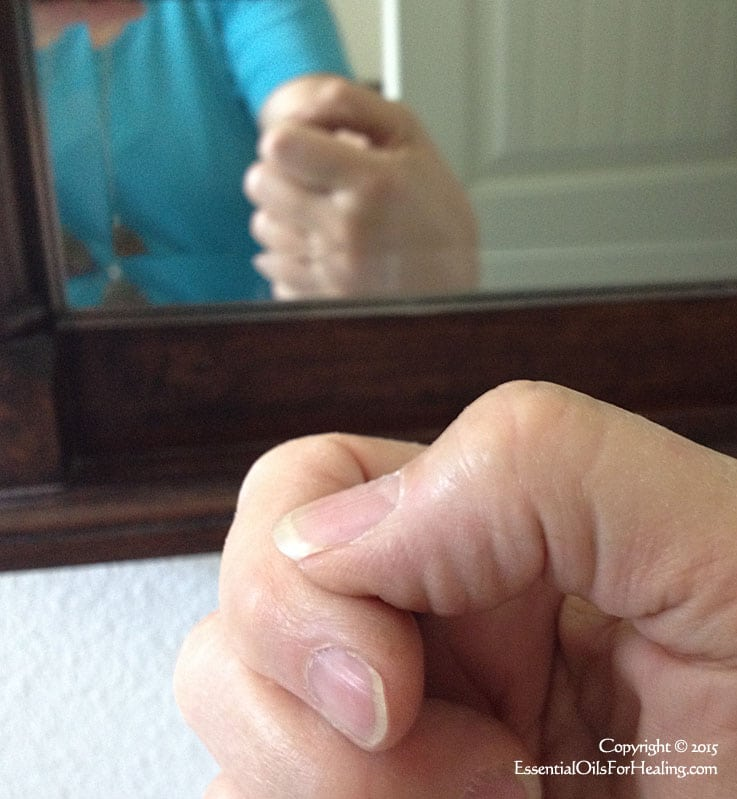 swollen thumb joint healed