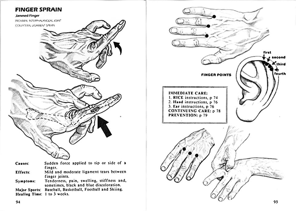 Finger sprains / strains can be helped with acupressure points