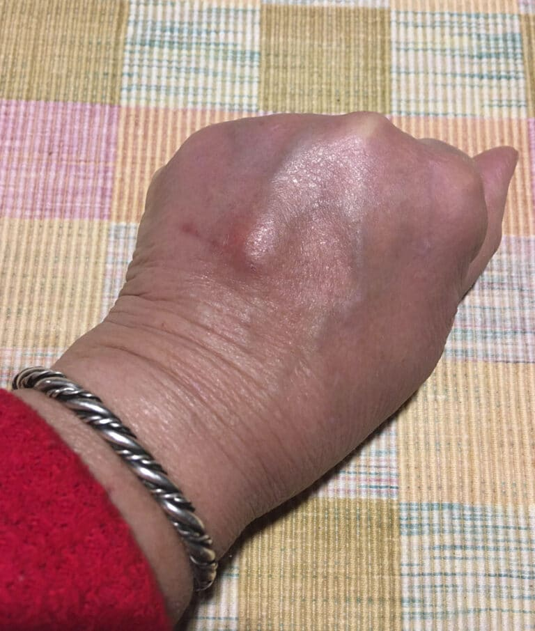 woman's hand,16 days after deep cat bite showing lumpy scar and healing scratch