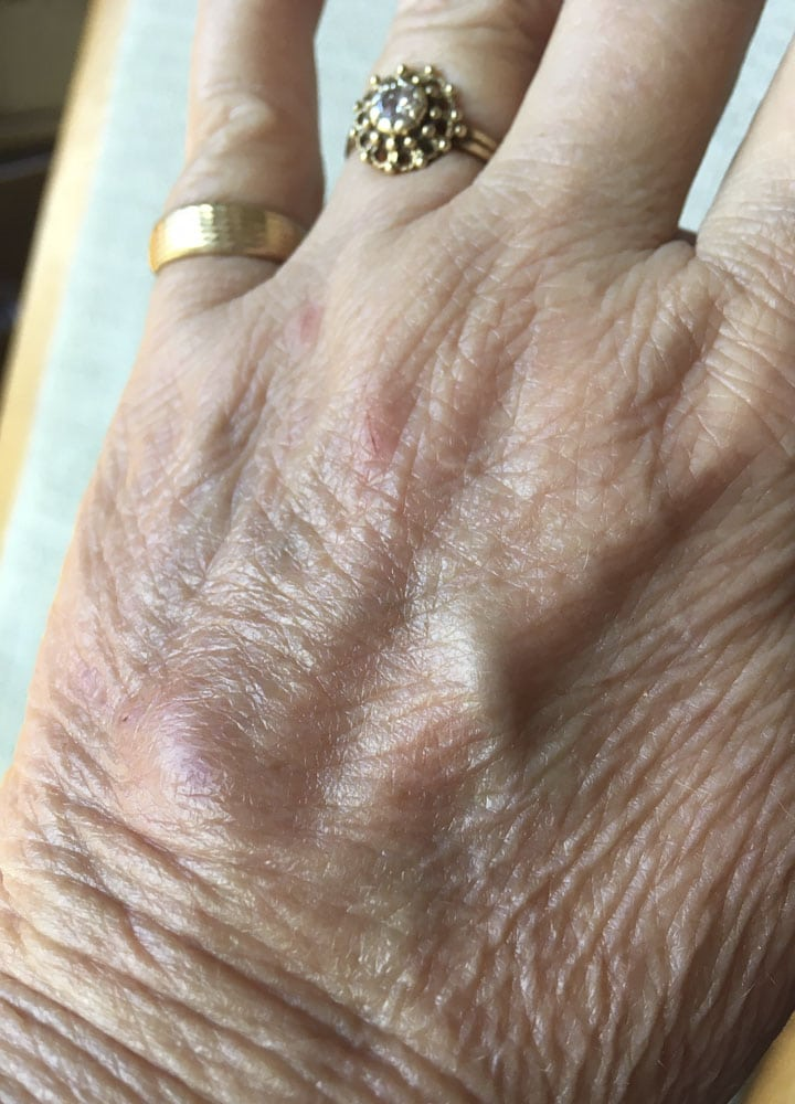 woman's hand, 28 days after deep cat bite with lumpy scar healing