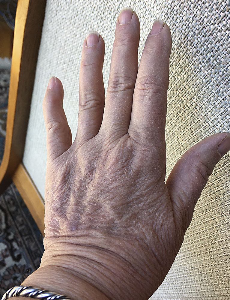 woman's hand, 38 days after deep cat bite, lumpy scar completely healed