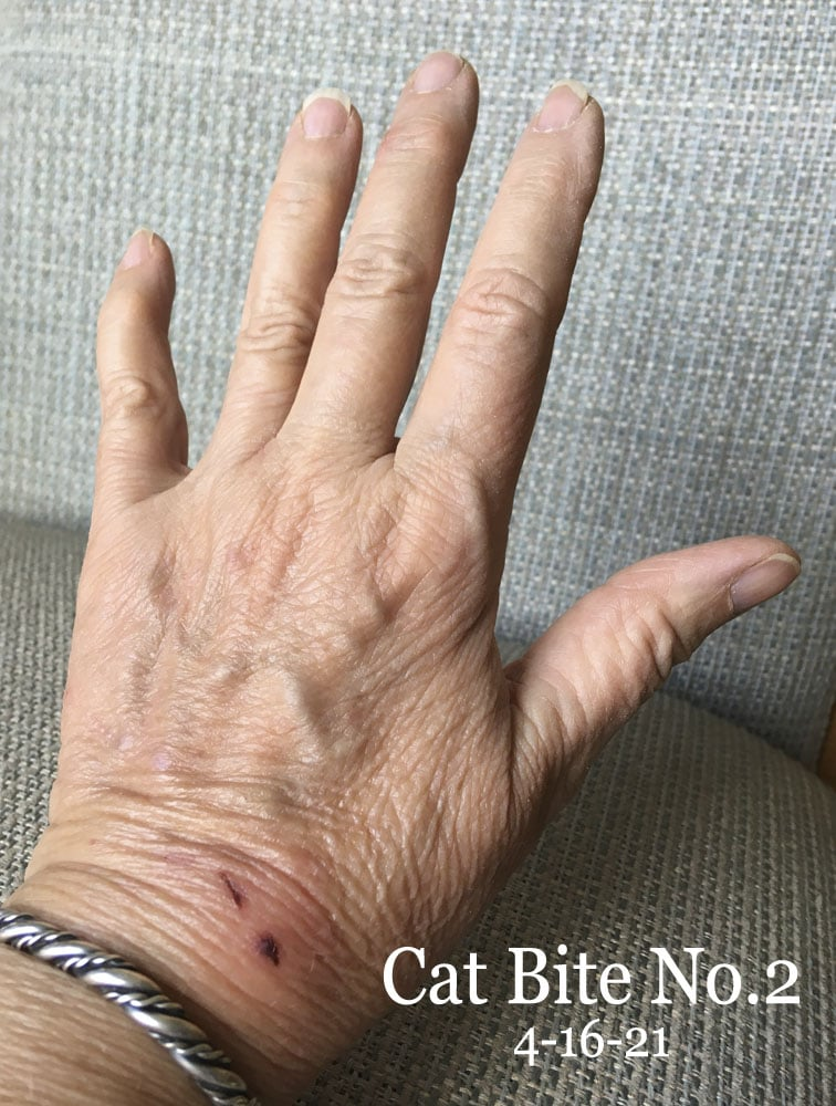 woman's hand, after a second cat bite with minor puncture wound and scratch