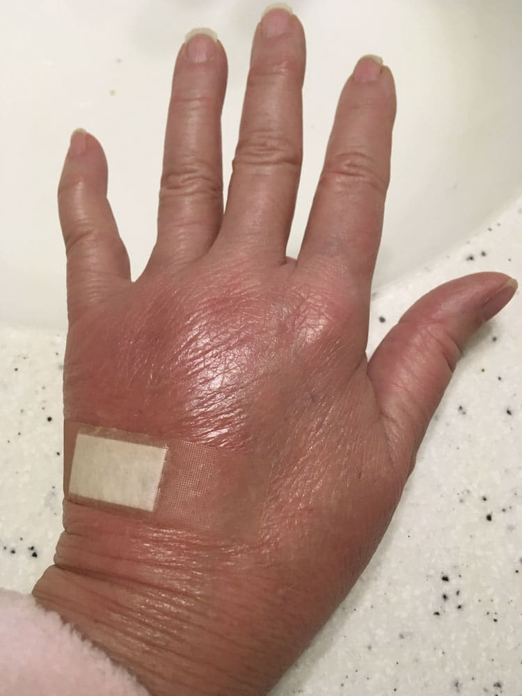woman's hand, swollen and red on day 2 after cat bite, covered with a bandage