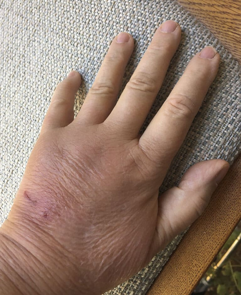 woman's hand, day 4 after cat bite with puncture wound and scratch