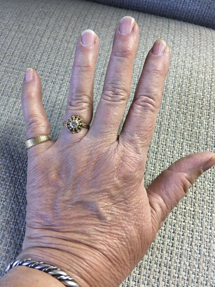 woman's hand, 66 days after deep cat bite, no evidence of injury visible
