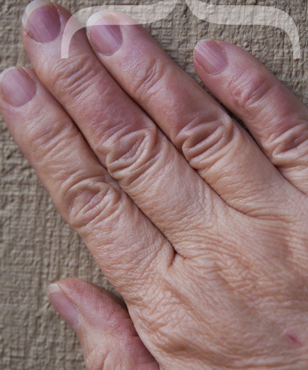steam burned fingers
